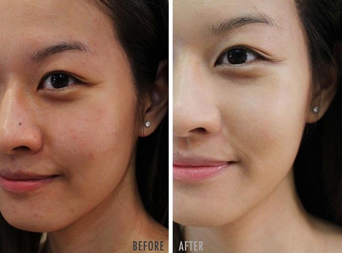 tác dụng của retinol